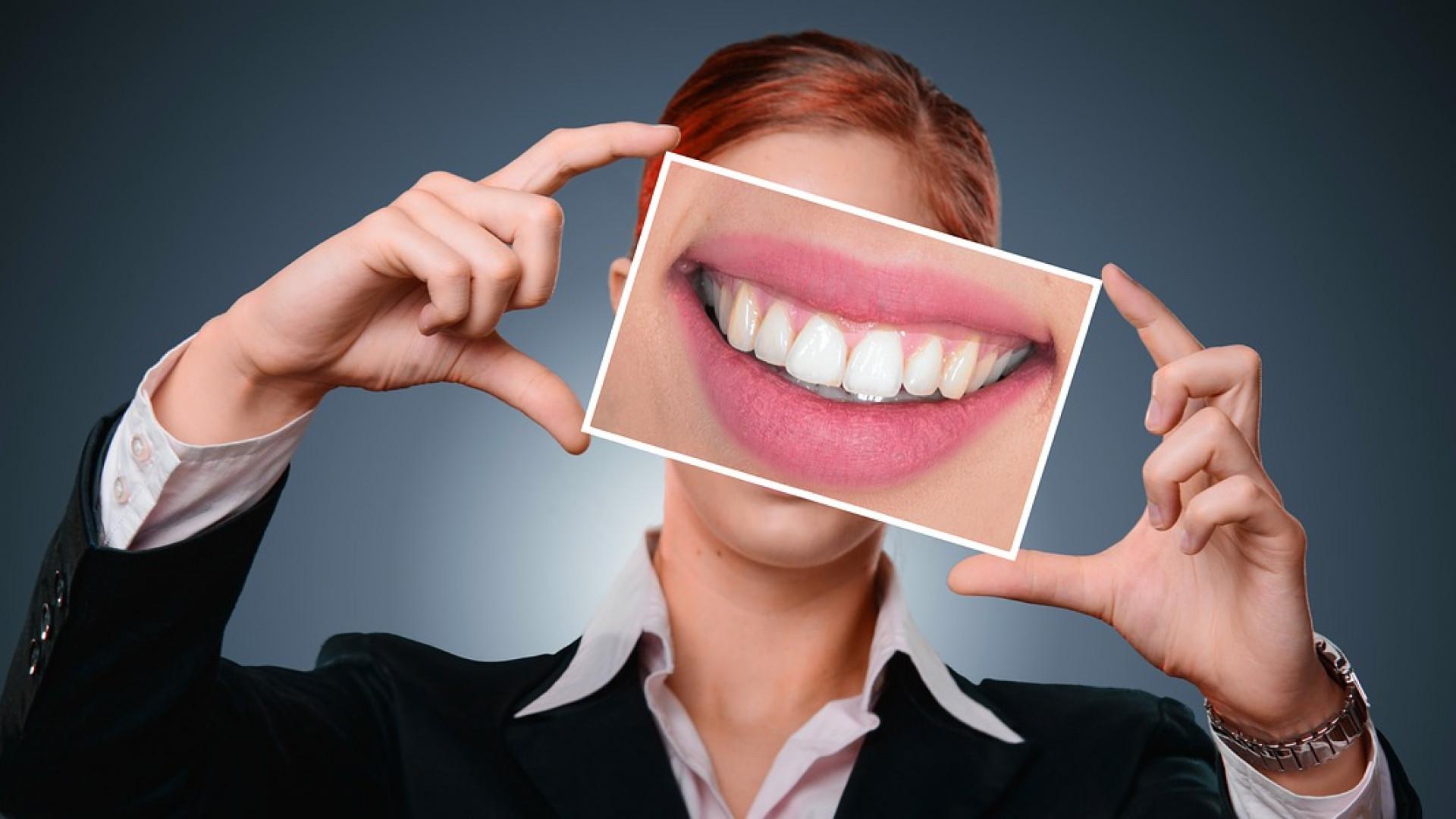 Pourquoi adopter les facettes dentaires ?